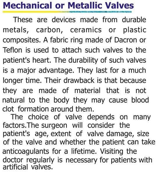 Mechanical or metallic valves.