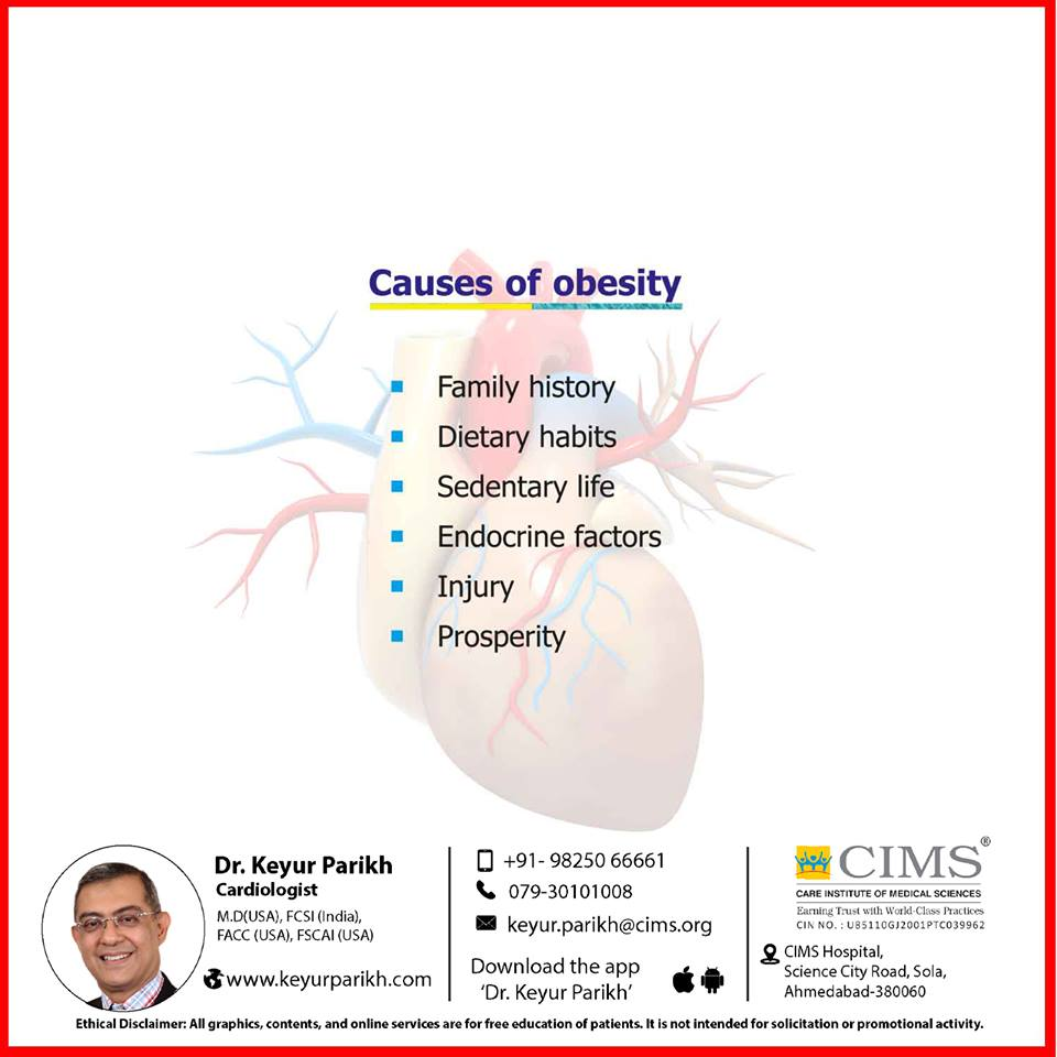 Causes of obesity.