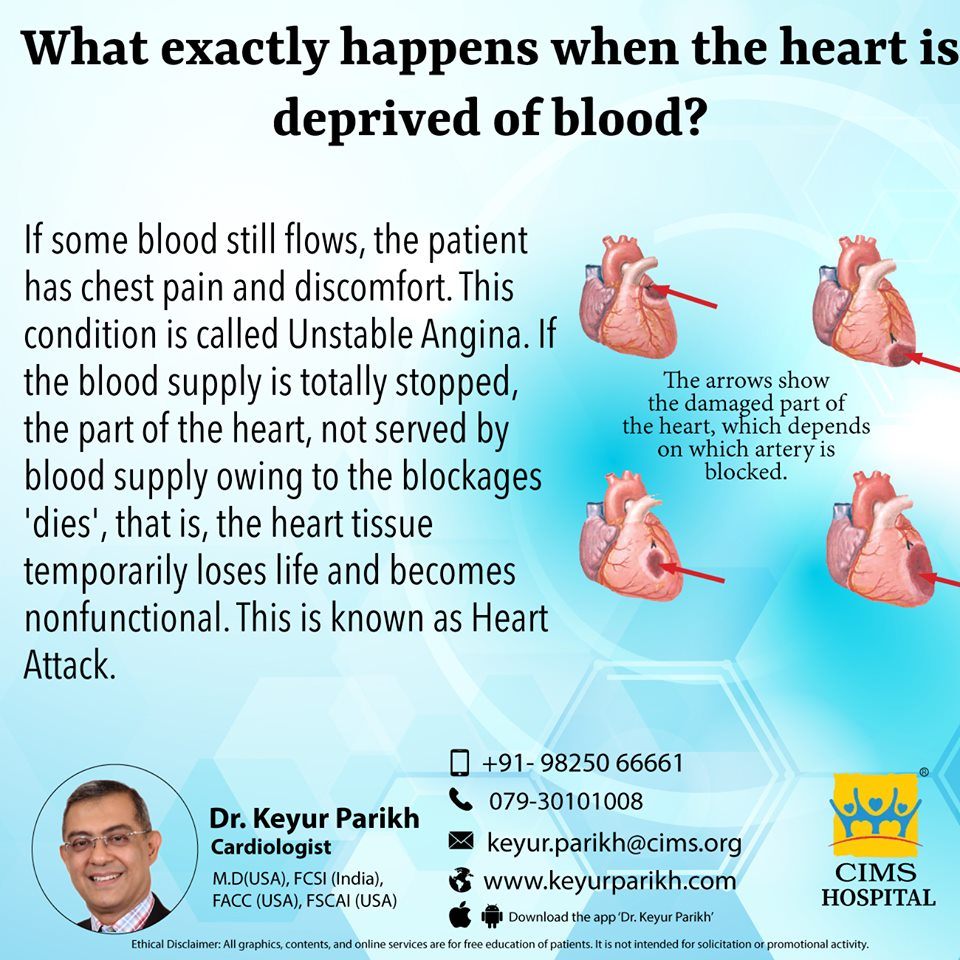 What exactly happens when the heart is deprived of blood?